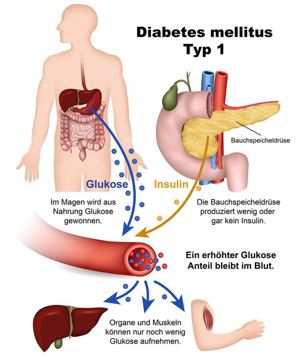 Diabetes Mellitus Hausarbeit Gp